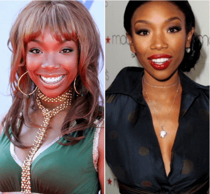 Brandy Norwood Plastic Surgery Before And After photo - 1