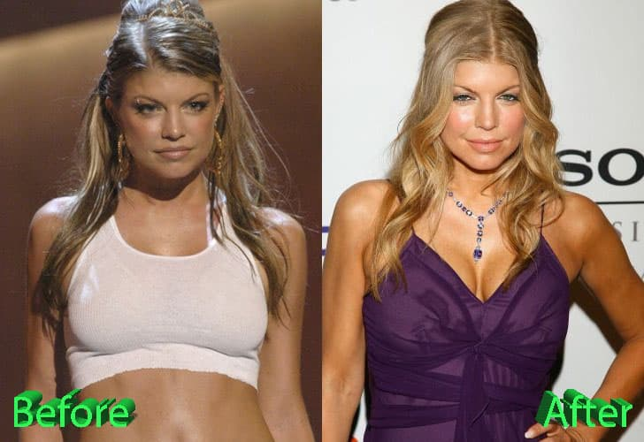 Braxton Plastic Surgery Before And After photo - 1
