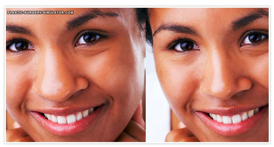 Brazil Plastic Surgery Before And After photo - 1