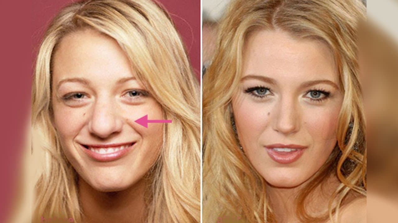 Britney Spears Plastic Surgery Before And Afters photo - 1