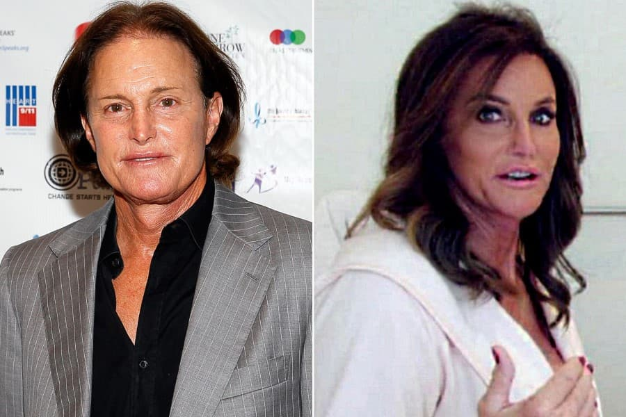 Bruce Jenner Plastic Surgery Caitlin Before And After photo - 1
