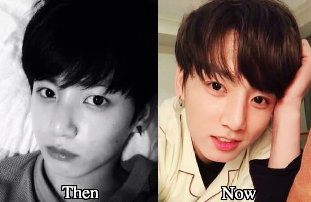 Bts Jungkook Before Plastic Surgery photo - 1