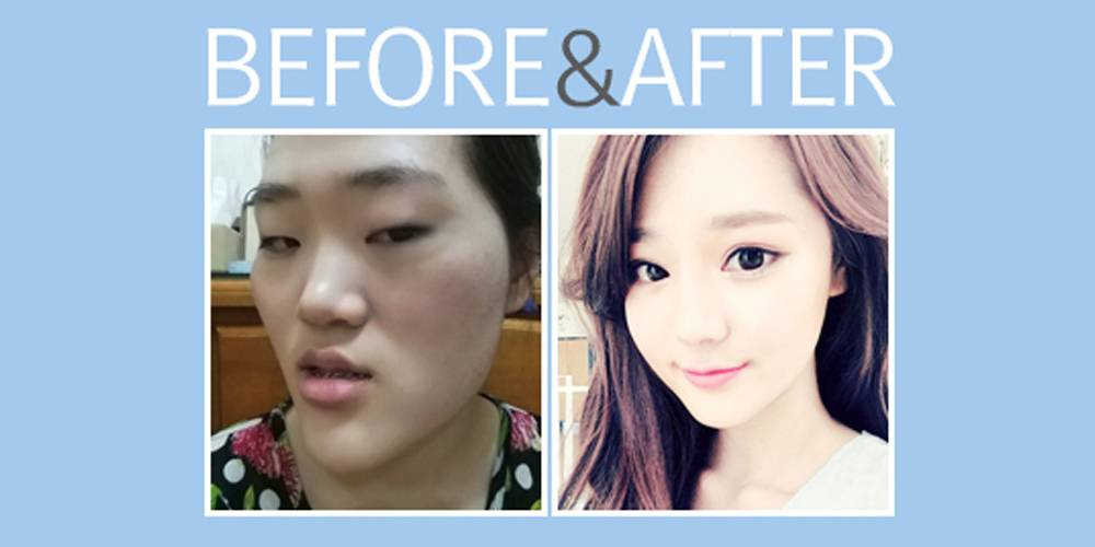 Bts Plastic Surgery Before And After photo - 1