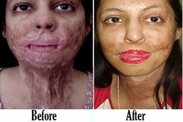 Burn Plastic Surgery Before And After photo - 1