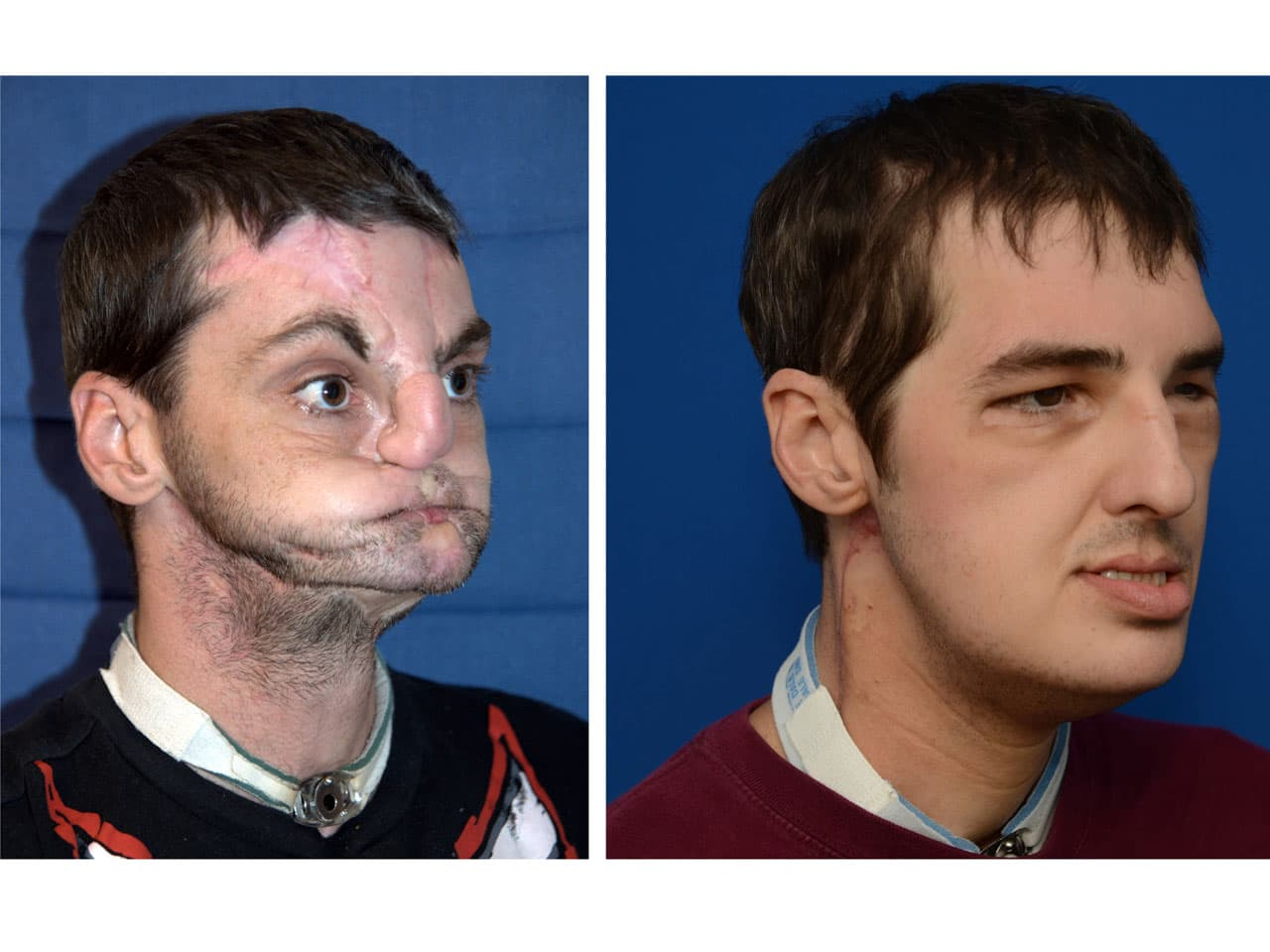 Burn Victim Gets Plastic Surgery Before And After photo - 1