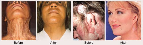 Burn Victim Plastic Surgery Before And After photo - 1
