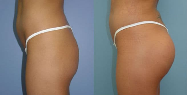 Buttocks Plastic Surgery Before And After photo - 1