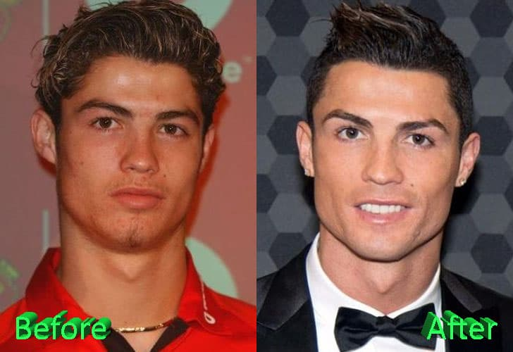 C Ronaldo Before And After Plastic Surgery photo - 1