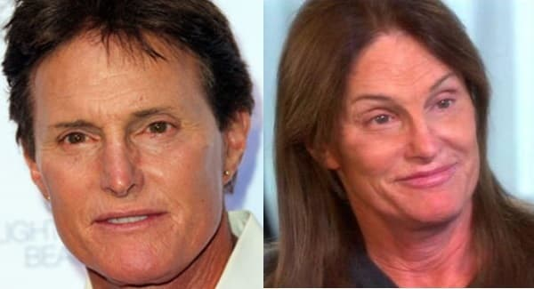 Caitlyn Jenner Before And After Plastic Surgery photo - 1