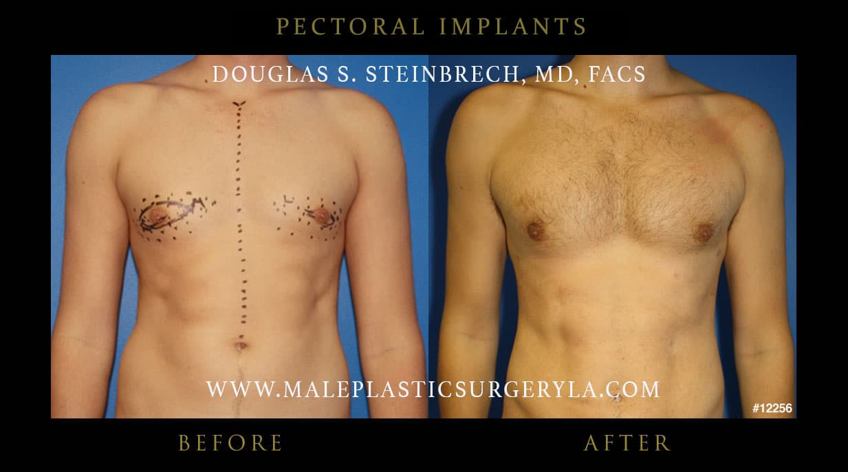 Calf Plastic Surgery Before And After photo - 1