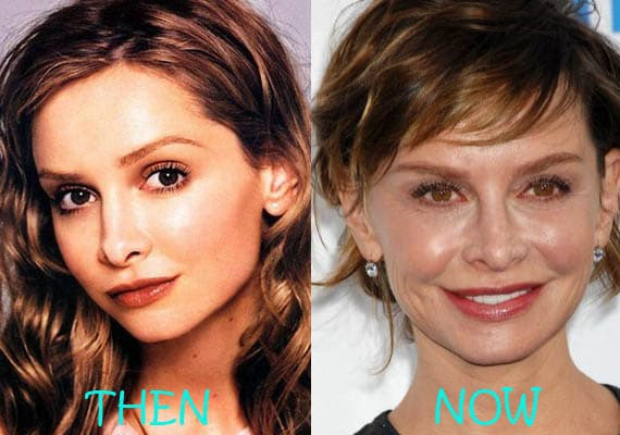 Calista Flockhart Plastic Surgery Before And After photo - 1
