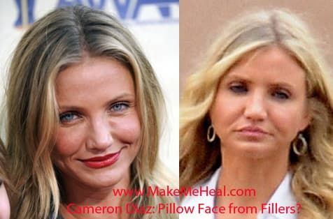 Cameron Diaz Before And After Plastic Surgery photo - 1