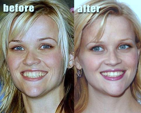 Can You See What You Will Look Like Before Plastic Surgery photo - 1