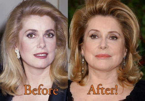 Carrie Fisher Before And After Plastic Surgery photo - 1
