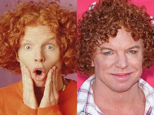 Carrot Top Plastic Surgery Before After photo - 1