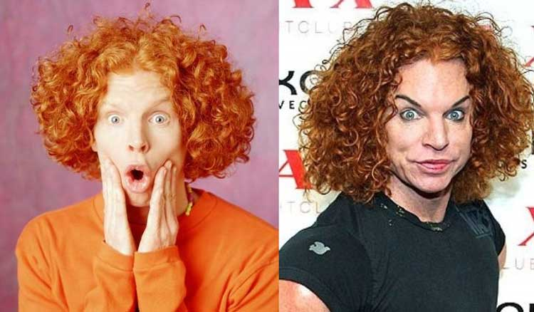 Carrot Top Plastic Surgery Before And After photo - 1