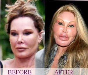 Cat Lady Plastic Surgery Before And After photo - 1