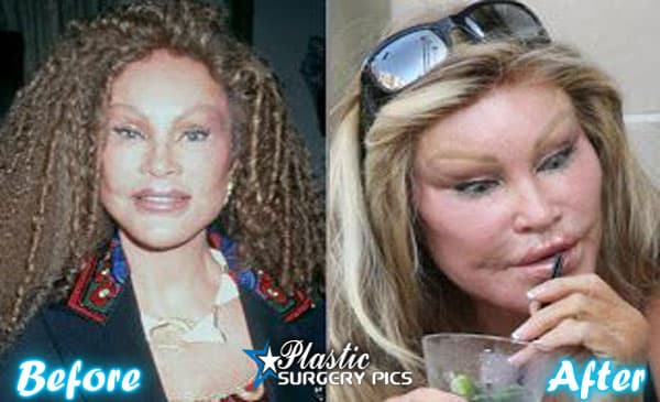 Catlady Before Plastic Surgery photo - 1