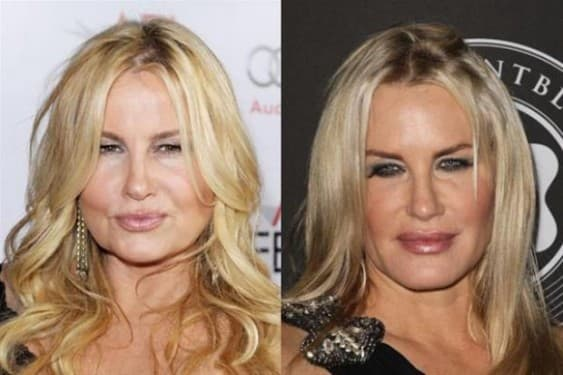 Ccelebrity Sierra Before And After Plastic Surgery photo - 1