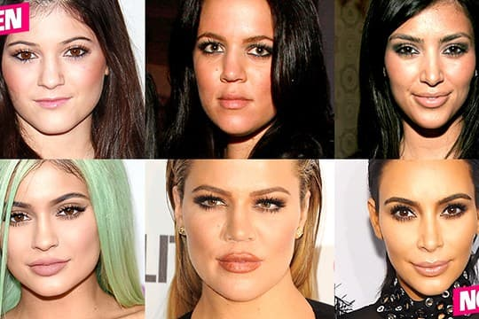 Celeb Before And After Plastic Surgery Kim Kardashian photo - 1