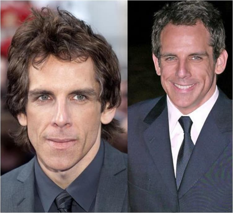 Celeb Before And After Plastic Surgery To Look Younger photo - 1