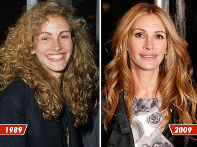 Celeb Plastic Surgery Before After photo - 1