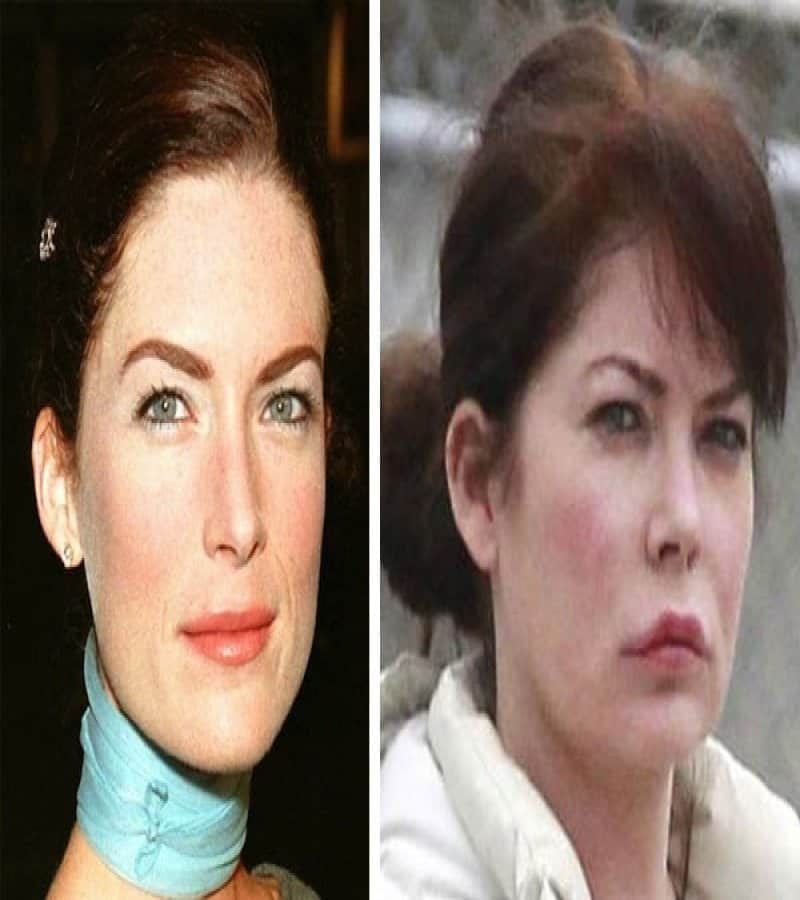 Celeb Plastic Surgery Disasters Before & After photo - 1