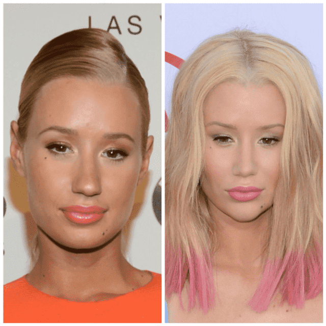 Celebrities Before And After Plastic Surgery Pictures photo - 1