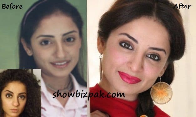 Celebrities Before Plastic Surgery photo - 1
