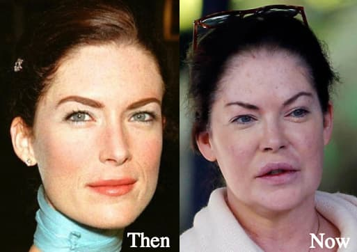 Celebrities Plastic Surgery Gone Wrong Before And After photo - 1