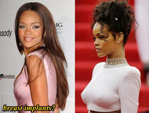 Celebrities Who Had Plastic Surgery Before 25 photo - 1