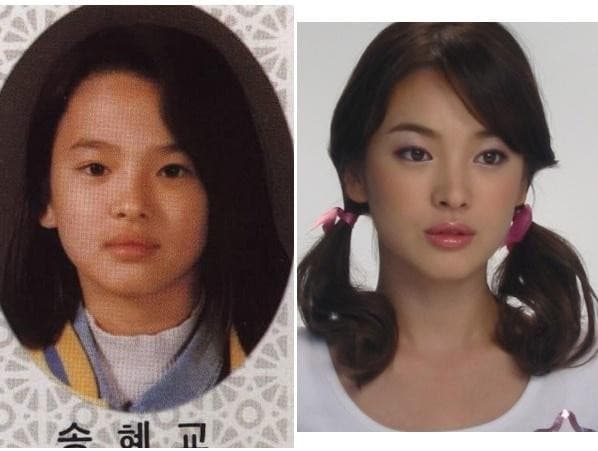 Celebrities Who Had Plastic Surgery Before And After photo - 1
