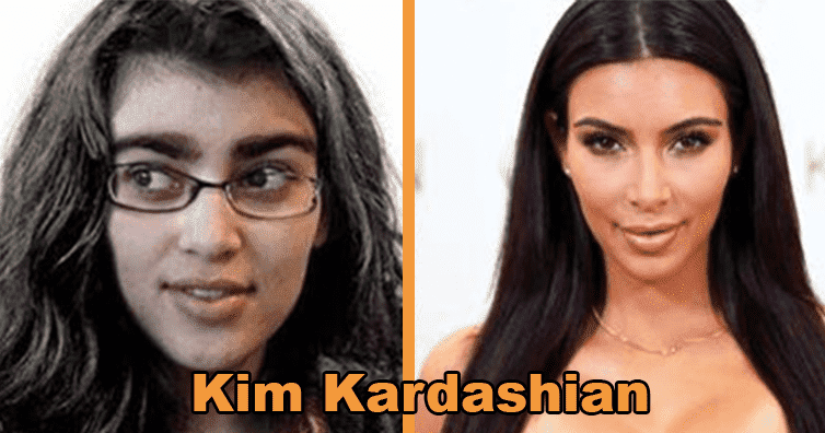 Celebrities Who Were Ugly Before Plastic Surgery photo - 1
