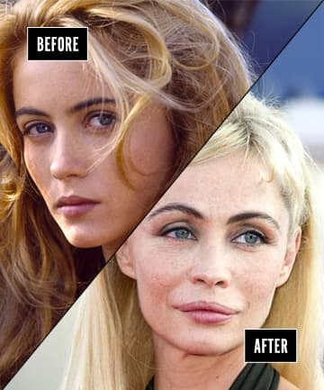 Celebrity Botched Plastic Surgery Before And After photo - 1
