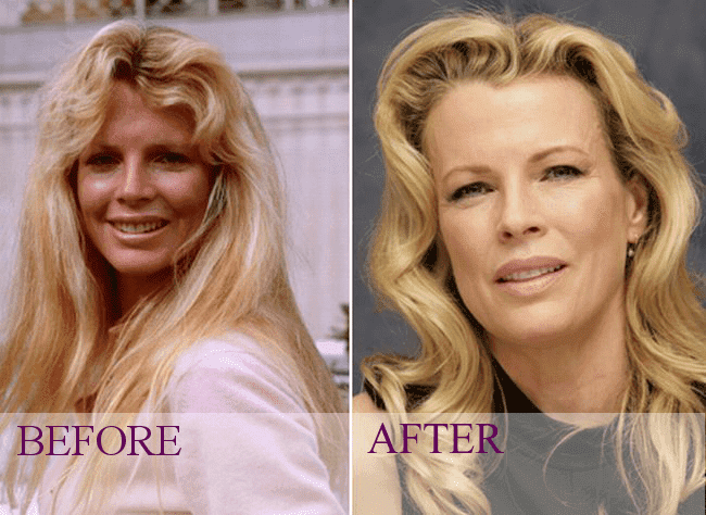 Celebrity Facial Plastic Surgery Before After photo - 1