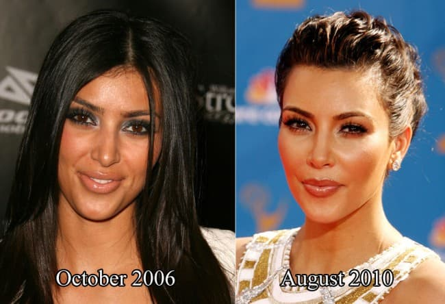 Celebrity Plastic Surgery Before And After 2013 photo - 1
