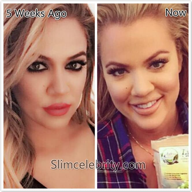 Celebrity Plastic Surgery Before And After 2015 photo - 1