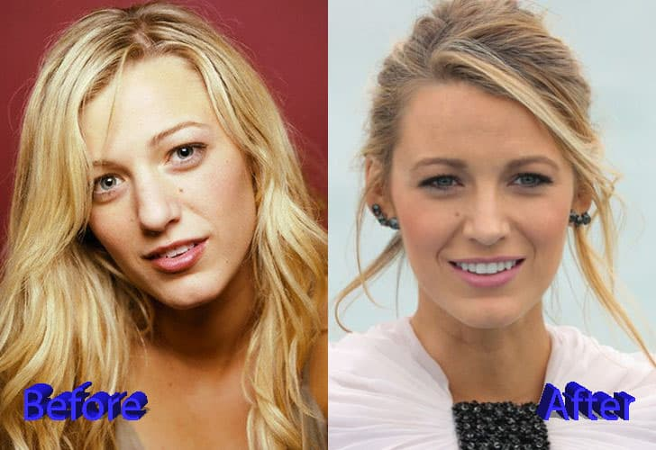 Celebrity Plastic Surgery Before And After Breast photo - 1