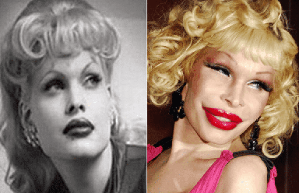 Celebrity Plastic Surgery Disasters Before And After photo - 1