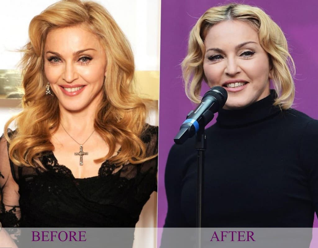 Celebs Before After Plastic Surgery photo - 1
