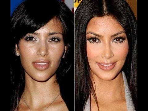 Celebs Before Plastic Surgery photo - 1