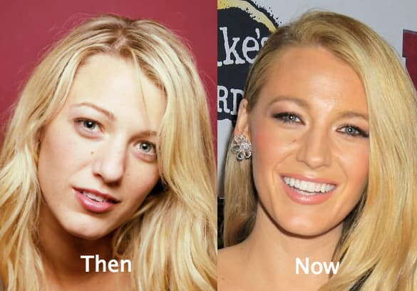 Celebs With Plastic Surgery Before And After photo - 1