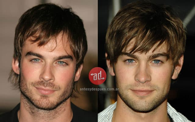 Chace Crawford Plastic Surgery Before And After photo - 1