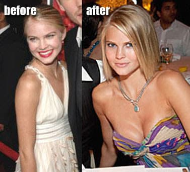 Chad Michael Murray Plastic Surgery Before And After photo - 1