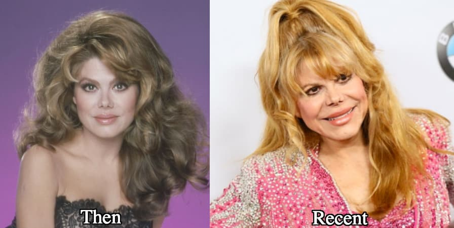 Charo Before Plastic Surgery photo - 1
