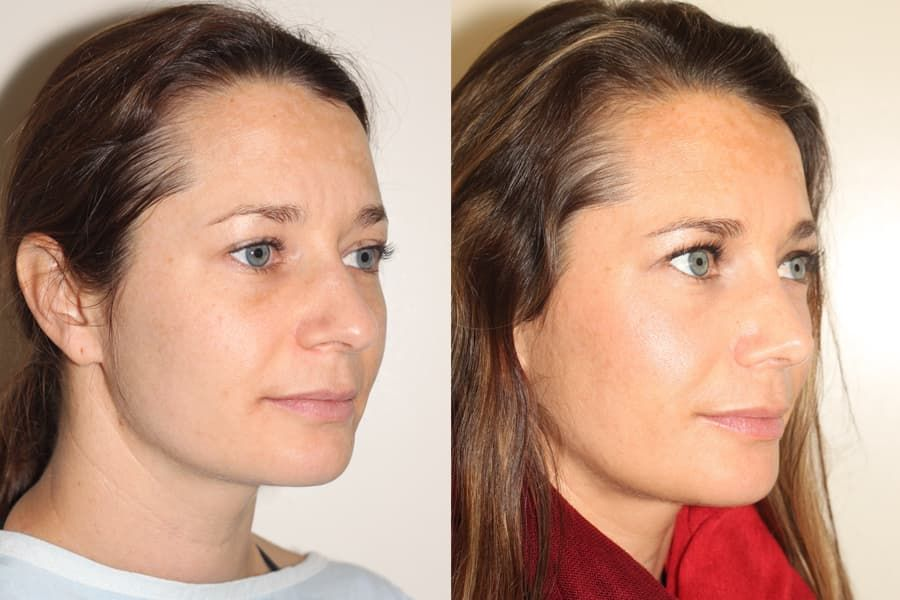 Cheek Plastic Surgery Before And After photo - 1