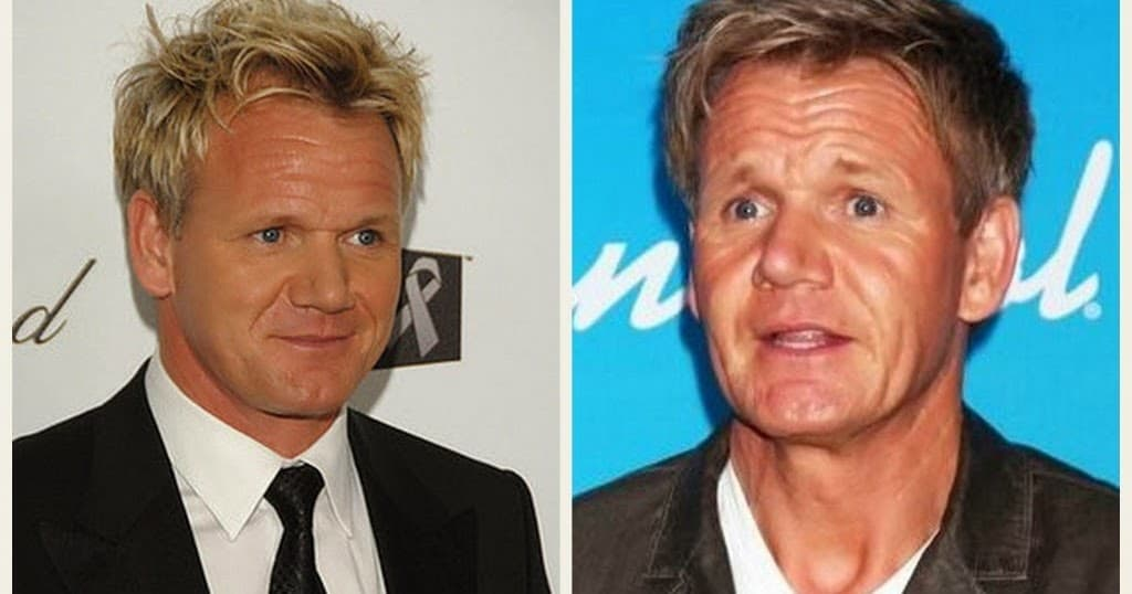 Chef Ramsay Before Plastic Surgery photo - 1