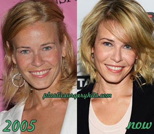 Chelsea Lately Plastic Surgery Before After photo - 1