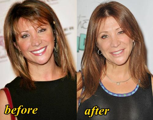 Cheri Oteri Plastic Surgery Before And After photo - 1
