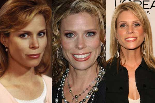Cheryl Ladd Before And After Bad Plastic Surgery photo - 1